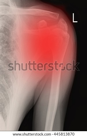 Xray shoulder and frozen shoulder - stock photo