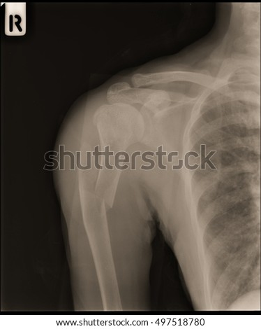 xray shoulder right and closed fracture humerus right