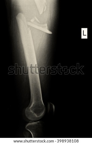 Xray Show Fractured Left Femur - stock photo