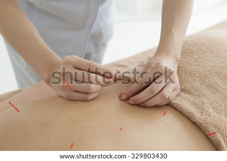 Young beautiful woman in an acupuncture therapy in a spa center. - stock photo