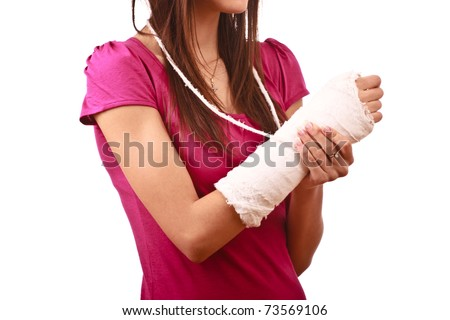 young female with broken hand in cast, face not visible - stock photo