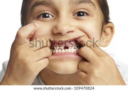Young girl with missing front tooth on white background - stock photo