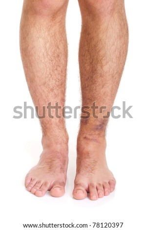 young male with sprained ankle isolated on white background (healthy vs unhealthy)