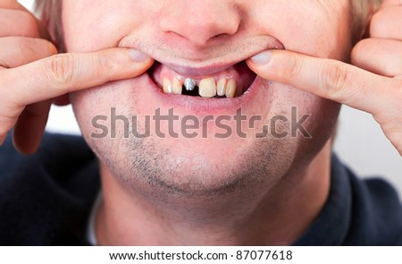 Young man face with broken tooth and fingers - stock photo