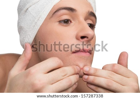 Young man is squeezing a pimple - stock photo