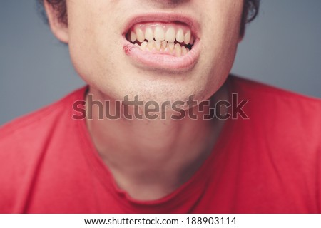 Young man with a cold sore on his lip and plaque on his teeth - stock photo