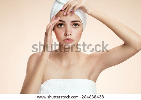 Young person squeezing her pimples, removing pimple from her face.  Woman skin care concept / photos of ugly problem skin girl on beige background  - stock photo