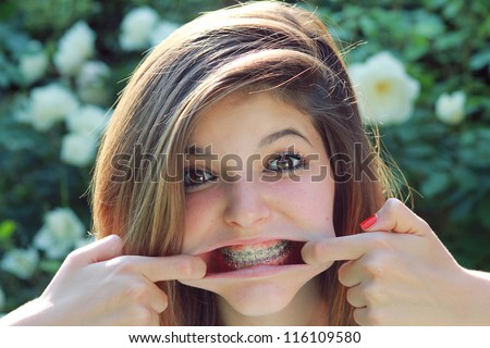 Young pretty teenager with funny expression , showing her braces . - stock photo