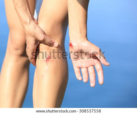 young sporty woman hold her sports injured leg - stock photo