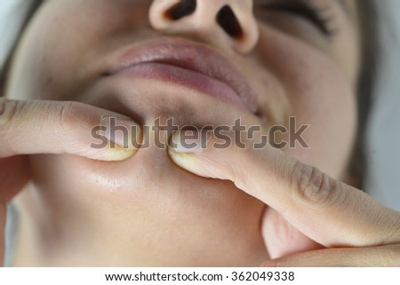 Young teenage girl with pimple on her face - stock photo