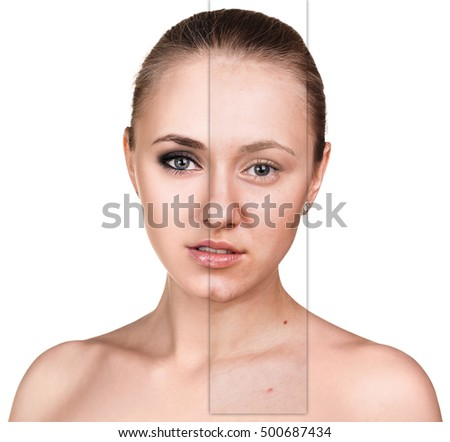 Young woman before and after retouch