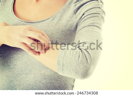 Young woman is scratching herself on arm.  - stock photo