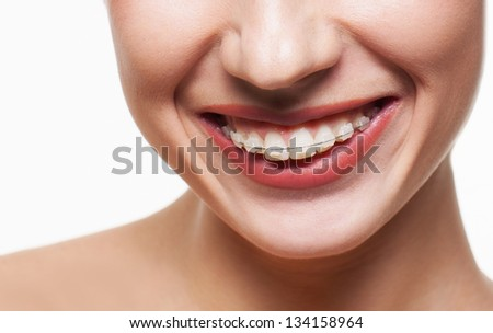Young woman smile with dental braces - stock photo