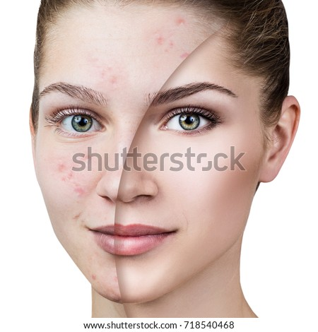 Acne Stock Images, Royalty-Free Images & Vectors | Shutterstock