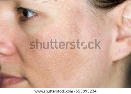 Young woman with pigmented skin / chloasma on her cheeks