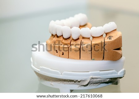 Zirconium Porcelain Tooth plate in Dentist Store - stock photo