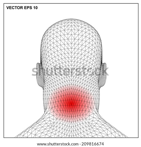 3d render Medical illustration showing inflamed, painful. - stock vector