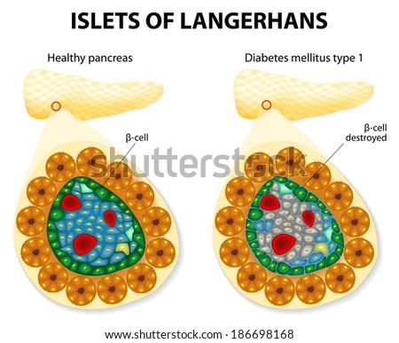 islets of Langerhans and diabetes mellitus type 1. - stock vector