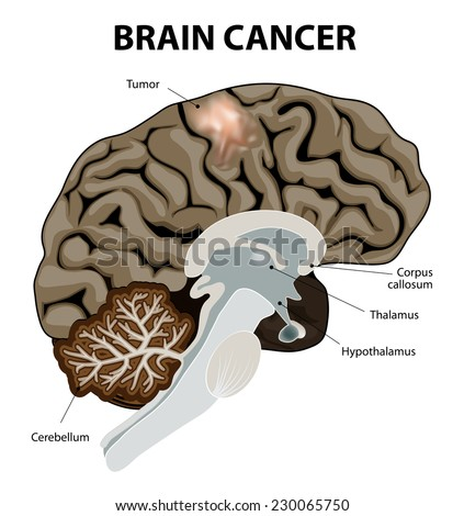 A brain tumor is an abnormal growth of tissue in the brain. Human anatomy - stock vector