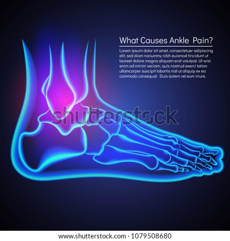 Broken Ankle Xrey Anatomy Ankle Pain Stock Vector 1079508680