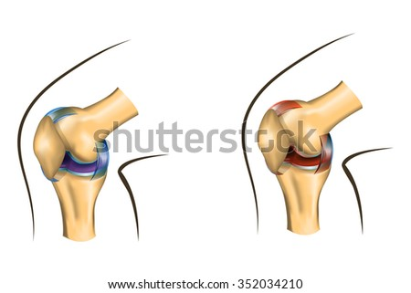 a healthy knee joint, and damaged by arthritis or sprain. comparison - stock vector