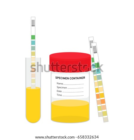 analysis of urine samples using chemstrips Drug testing is the evaluation of a urine, blood or other type of biological sample to determine if the subject has been using the drug or drugs in question.