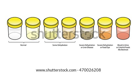A series of urine / pee samples showing different colors. Indications of disease and levels of hydration.