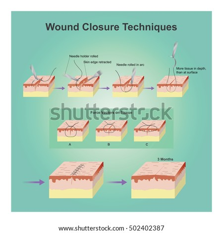 AND WOUNDS LACERATIONS CLOSURE AND EMERGENCY CARE