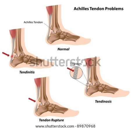 Achilles (calcaneal) tendon problems causing foot pain - stock vector