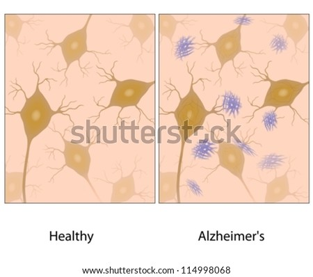 Alzheimer's disease brain tissue with amyloid plaque - stock vector