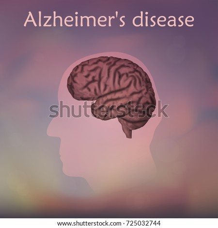 running head alzheimer's disease Running head: cultural differences in alzheimer's 1  alzheimer's  disease and dementia that are influenced by various factors such as culture,.