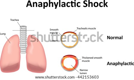 Anaphylactic Shock Stock Vector Hd Royalty Free 442153603