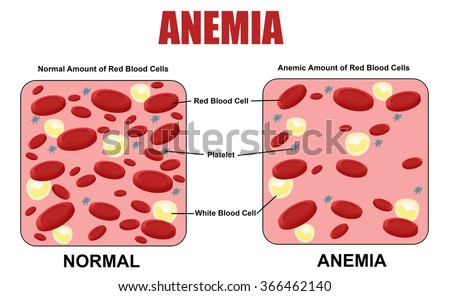 Anemia diagram, vector illustration (for basic medical education, for clinics & Schools) - stock vector