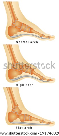 Arch of Foot. Set of flat foot, high arch. Rheumatoid Arthritis In Arch Of Foot. Various stages of the disease on white background - stock vector