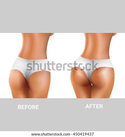 before and after sexy buttocks excercise