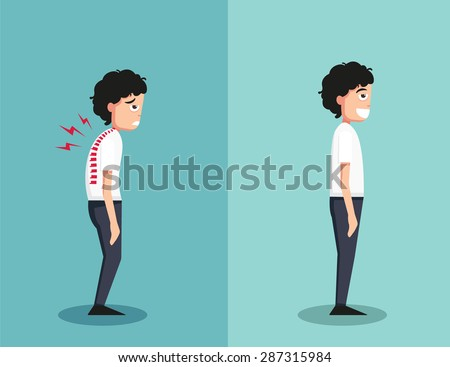 Best and worst positions for standing, illustration, vector - stock vector