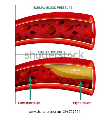 Blood Vector Image - stock vector