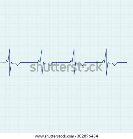 Blue ekg line on graph paper background, heart monitor,heart rhythm vector - stock vector