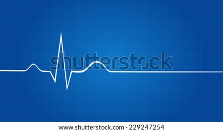 Blueprint Of Electrocardiogram Last Life Sign - stock vector