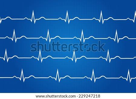 Blueprint Of Normal Electrocardiogram Graphic - stock vector