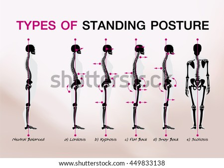 Posture Stock Images Royalty Free Images Amp Vectors