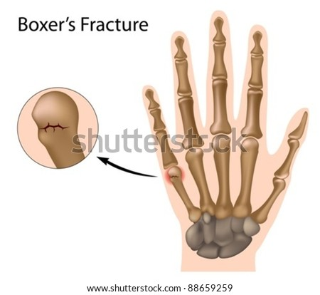 Boxer's fracture, the most common finger fracture