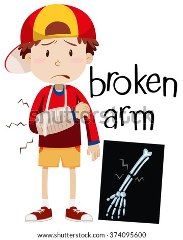 Broken Bones Stock Images, Royalty-Free Images & Vectors ...
