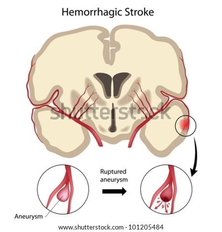 Brain hemorrhagic stroke - stock vector