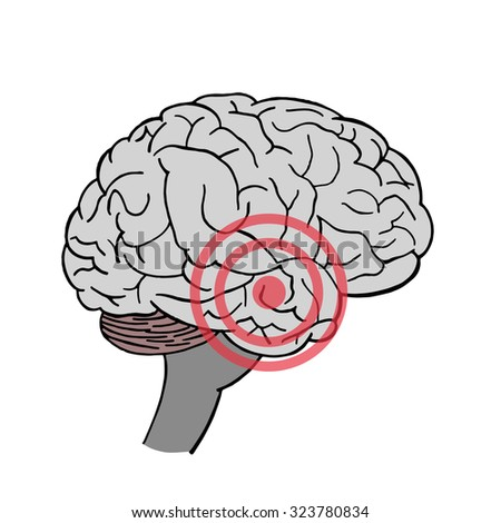 Brain in vector. Headache. Place of pain in brain. - stock vector