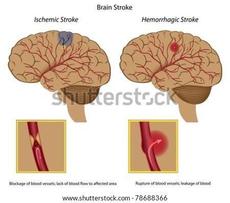 Brain stroke - ischemic and hemorrhagic - stock vector