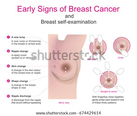 how to detect breast cancer early
