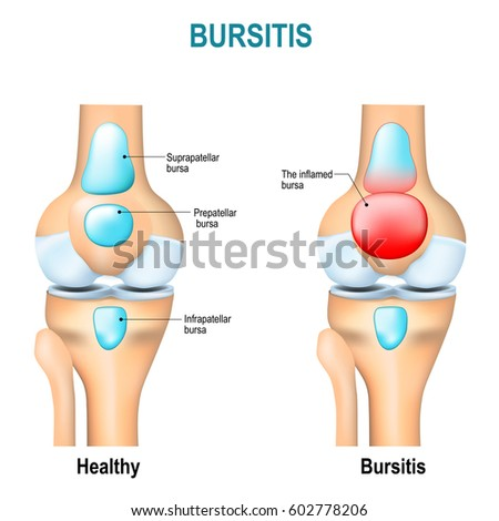 Bursitis healthy humans knee knee inflammation stock vector royalty bursitis healthy humans knee and knee with inflammation of bursae synovial fluid ccuart Choice Image