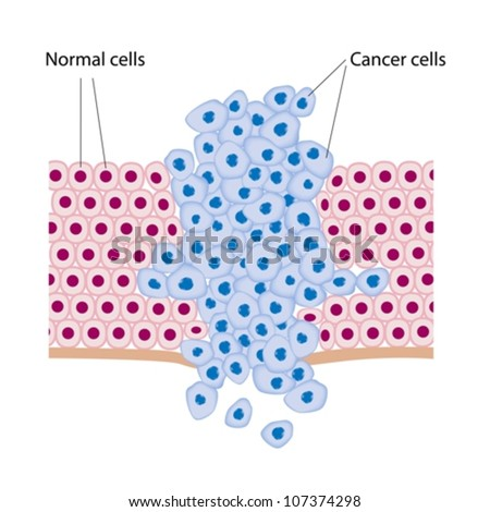 Cancer cells in a growing tumor - stock vector