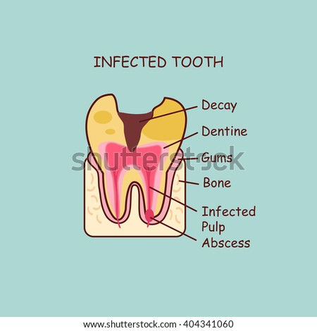 cartoon dental anatomy infected tooth ,  great for health dental care concept - stock vector